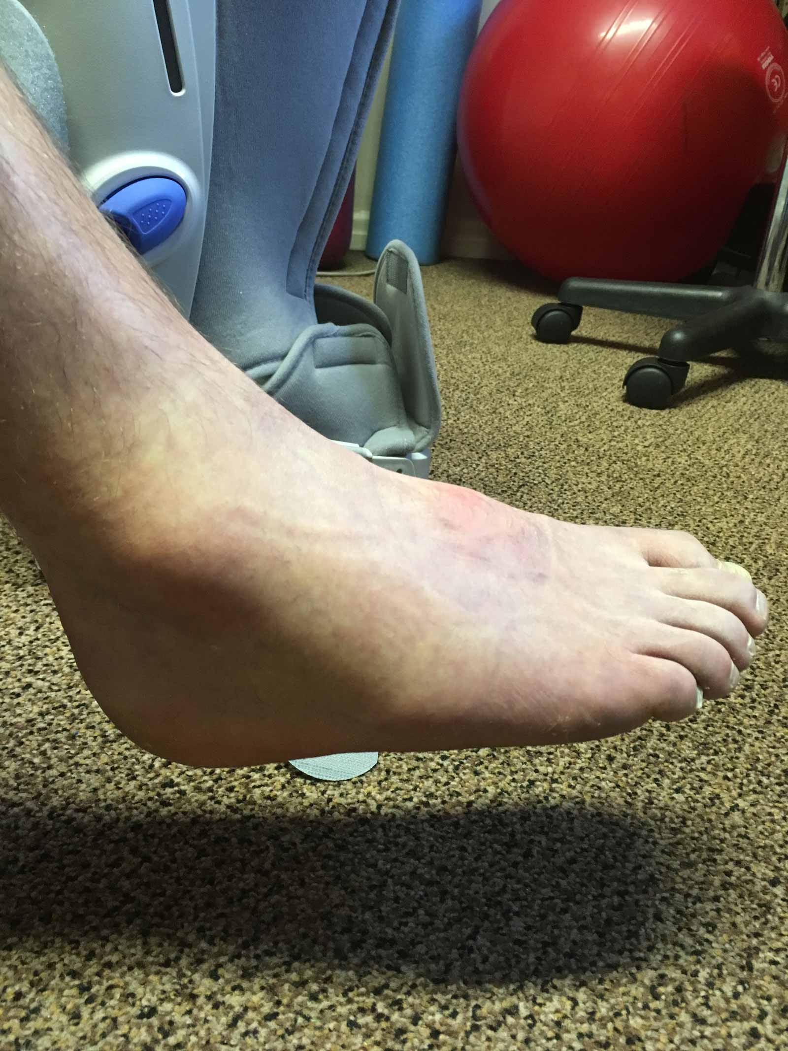 Ankle-Swelling